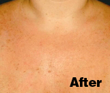 Is It Time for a Photofacial?