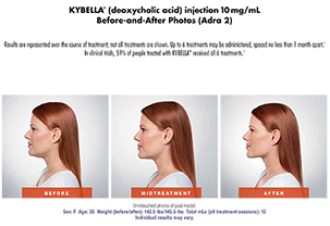 Kybella to Help Improve Appearance of a Double Chin
