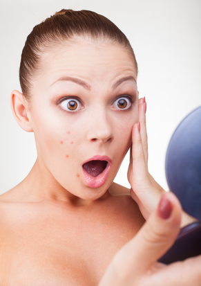 Why Do Adults Get Acne?